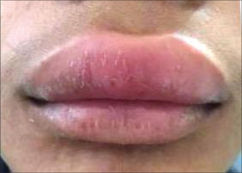 Figure 1: Preoperative view showing swelling of the upper lip