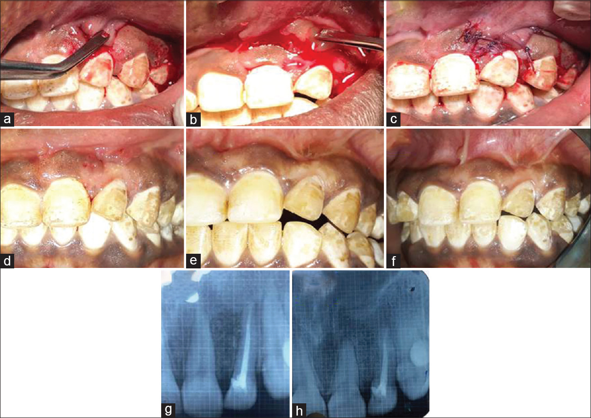 Figure 4: (a-h) Flap advancement; platelet-rich fibrin placement; closure of flap; 8 days, 3- and 9-month postoperative clinical evaluation showed closure of fenestration; 3-month postoperative intraoral periapical X-ray showed graft stability and defect resolution at 9 months