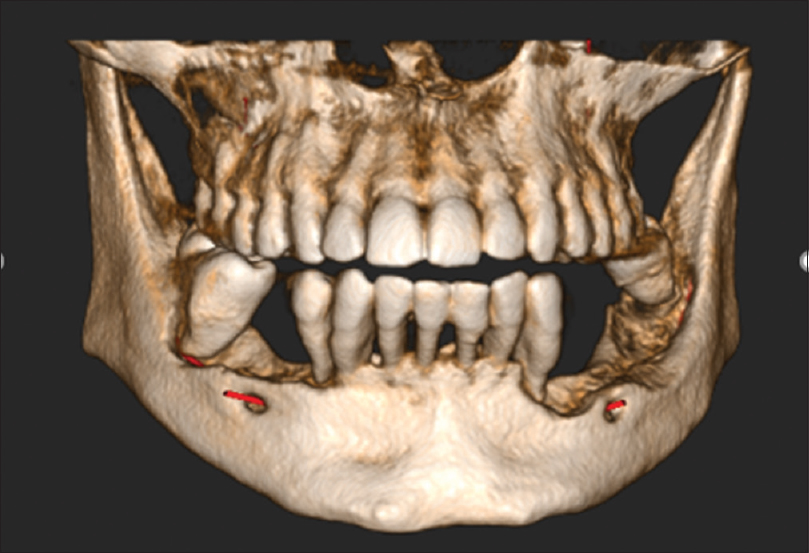 Figure 4: Cone-beam computed tomography reconstructed panoramic view showing bone loss in the right and left mandible up to the level of the inferior alveolar nerve