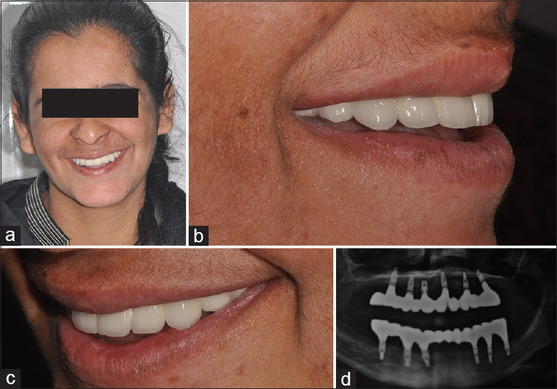 Figure 11: Frontal smile view (a); right lateral smile view (b); left lateral smile view (c); orthopantomogram with prosthesis placed (d)
