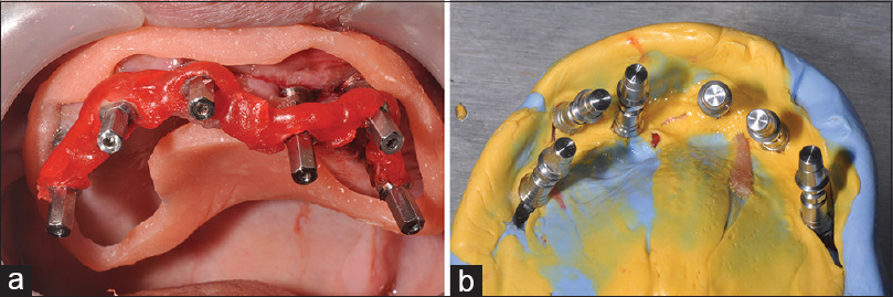 Figure 7: Intraoral open-tray impression with a special tray (a); intaglio surface of the impression (b)